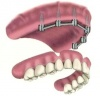 Implant Supported Overdenture (with 6 implants)