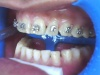 Ceramic Braces Price/Cost