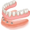 Implant Supported Overdenture (with 4 implants)